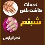 بهترین کاشت ناخن شرق تهران